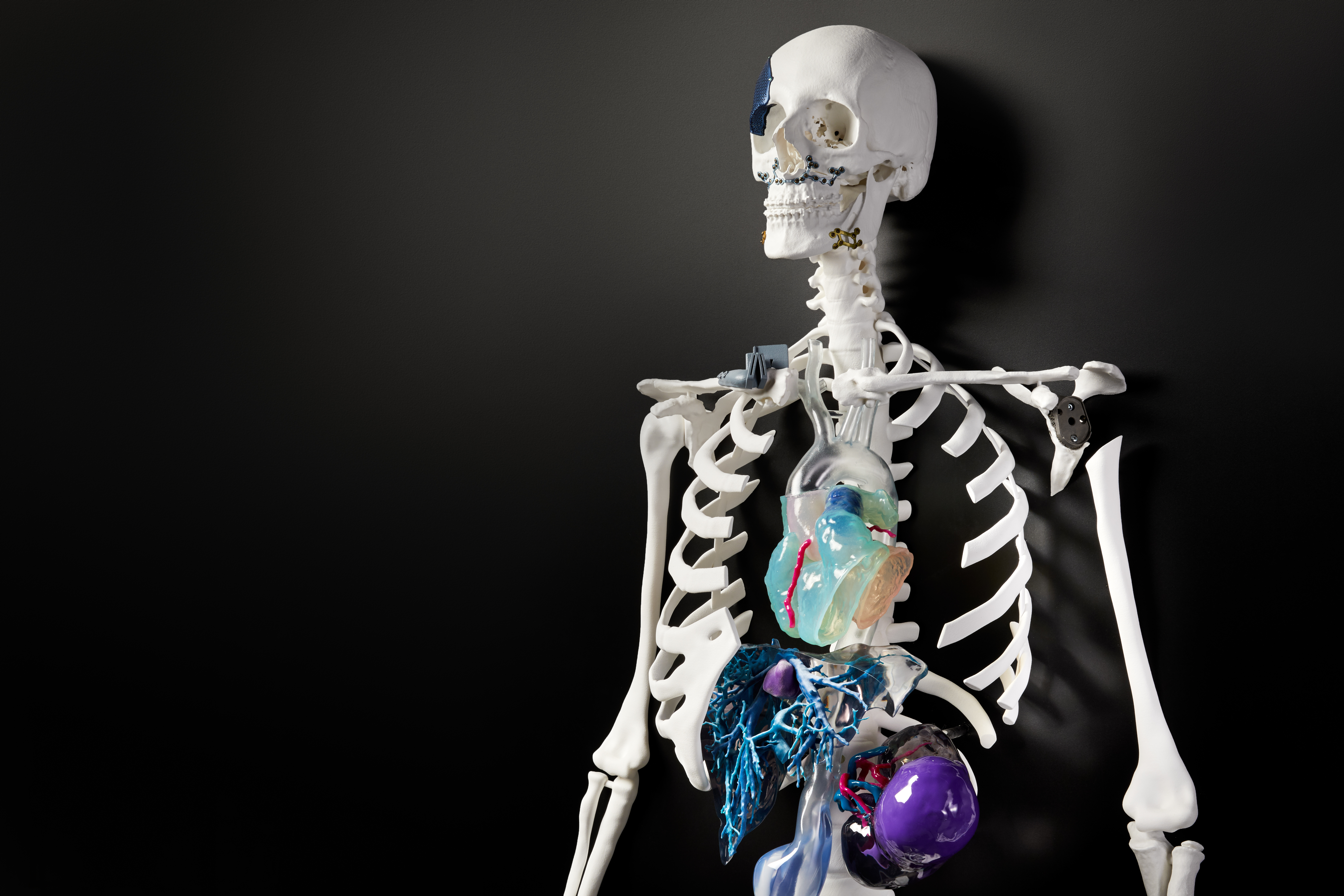Fit To Print: The Future Of Orthopedic Surgery Will Come Out